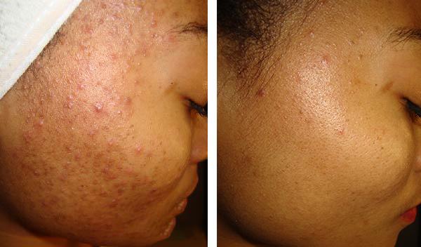 Image result for dermaceutic Mask 15